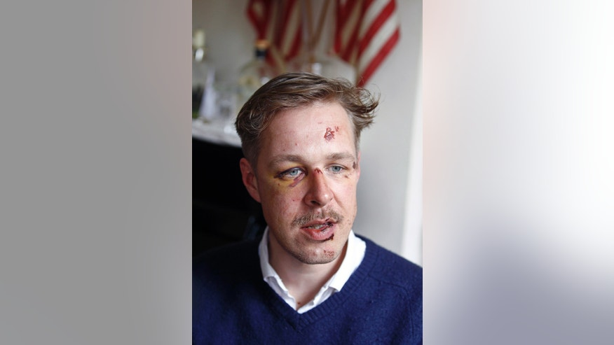Wilfred de Bruijn, a Dutch citizen who lives and works as a librarian in Paris, France, speaks during an interview with The Associated Press at his apartment in Paris, Wednesday, April 10, 2013. De Bruijn was beaten unconscious near his home early Sunday morning in central Paris, sustaining 5 fractures in his head and face, abrasions and a lost tooth. After posting a photo of his wounds on Facebook, the image went viral and de Bruijn has become a national cause celebre of the pro-gay campaign. (AP Photo/Remy de la Mauviniere)