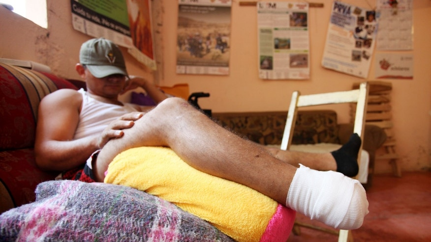 **CLARIFIES WHEN MIGRANT WAS INJURED ** A migrant who did not want to be identified, rests at a shelter in Acayucan, Mexico, Thursday, May 2, 2013. The unidentified migrant was attacked on a freight train he was riding through Mexico in mid-April, resulting in the amputation of his foot. In a similar incident, migrants bound for the U.S. on a freight train traveling through the Gulf Coast state of Veracruz were assaulted by armed men, Wednesday, May 1, 2013. Some jumped from the train to escape and others were thrown off, said migrants' rights activist Tomas Gonzalez Castillo. At least 10 Honduran migrants are recovering from wounds suffered in the attack. (AP Photo/Felix Marquez)