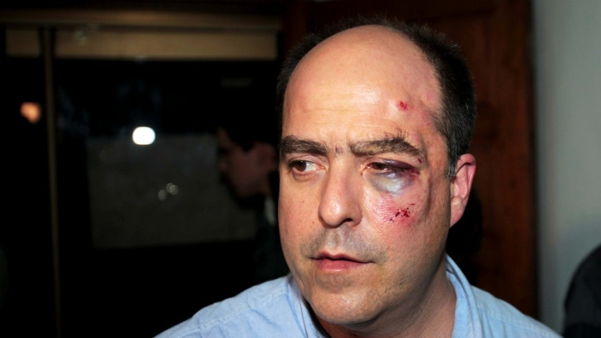 Opposition lawmaker Julio Borges arrives with a bruised face to his political party's headquarters before speaking to the press in Caracas, Venezuela, Tuesday, April 30, 2013.  Members of Venezuela's National Assembly say post-election tensions set off a brawl between lawmakers that left Borges badly bruised and bleeding, after he and other opposition lawmakers tried to protest a proposal barring them from legislative activities.  The opposition has refused to accept President Nicolas Maduro's narrow April 14 victory, prompting the pro-government side to try to bar them from the assembly. Tuesday's fight was the second in which opposition legislators said the other side attacked them. (AP Photo/Fernando Llano)