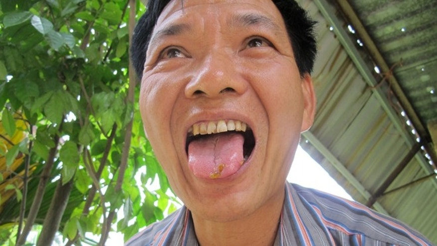 In this Tuesday, May 21, 2013 photo, a Vietnamese salesman displays several grains of salmonella-based rat poison on his tongue in Hanoi, Vietnam. The rat bait is banned in the United States on human safety grounds, but produced and used in Vietnam and exported to Africa. Rat poisons normally come with warnings against human consumption and medical directions about what to do if accidentally eaten. Not so âBiorat,â a bait produced in Vietnam by a Cuban-state owned company that earns foreign exchange for the Castro government. The company claims the salmonella strain it includes is âharmlessâ to everything - humans, the environment, pets and other animal species - apart from rats. That is disputed by the Centers for Disease Control and Prevention, a U.S. federal government agency, and other international health institutions including the World Health Organization. (APPhoto/Chris Brummitt)