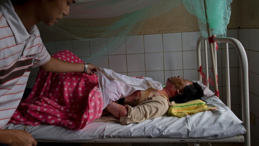 Aye Aye Win, a Buddhist woman who was set on fire by a Muslim man on Tuesday instigating sectarian violence lies on a hospital bed with burn injures in Lashio, northern Shan State, Myanmar, Thursday, May 30, 2013. More than 1,000 Muslims who fled Myanmar's latest bout of sectarian violence huddled Thursday in a Buddhist monastery guarded by army soldiers as calm returned to this northeastern city, though burnt out buildings leveled by Buddhist rioters still smoldered.(AP Photo/Gemunu Amarasinghe)