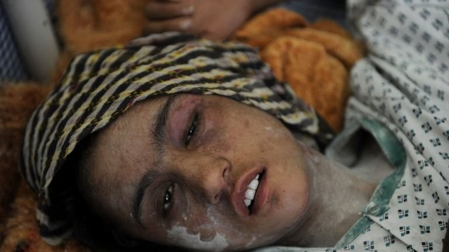 Afghan child bride Sahar Gul, 15, lies in a bed as she recovers at the Wazir Akbar Khan hospital in Kabul, on January 12, 2012. A court in Kabul has ordered the early release of three people convicted over the torture of Sahar, in a move denounced by activists as a blow for women's rights.