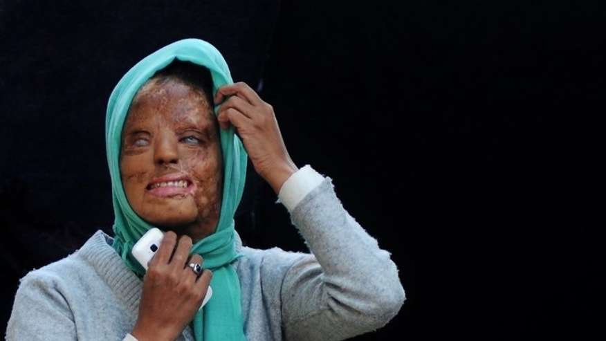 In a picture taken on December 6, 2012, acid attack survivor Sonali Mukherjee poses outside her temporary home in New Delhi. India's top court ruled Thursday that authorities must regulate the sale of acid used in a spate of attacks on women by jilted boyfriends and others.