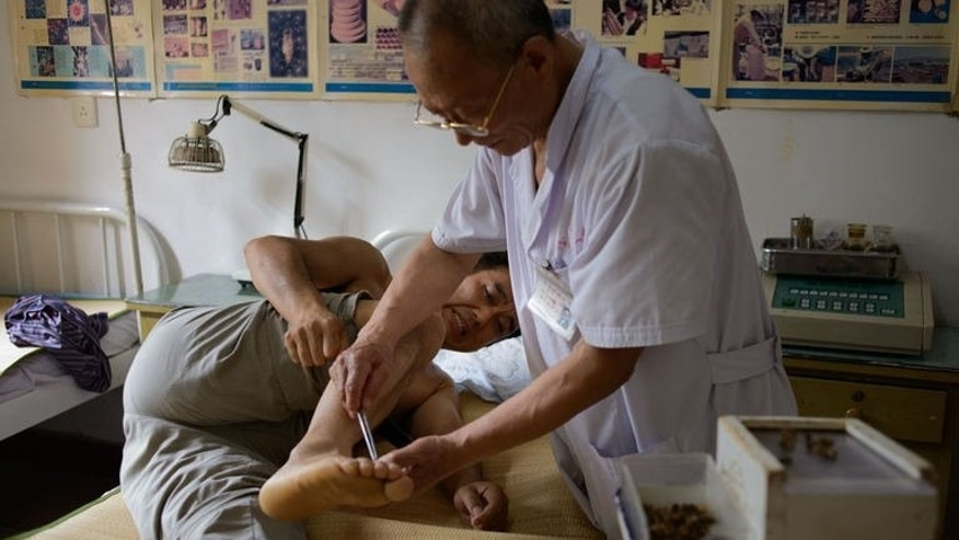 A patient receives a bee sting administered by a doctor of traditional Chinese medicine at a clinic on the outskirts of Beijing on August 2, 2013. More than 27,000 people have undergone the procedure, which can involve dozens of punctures per session.