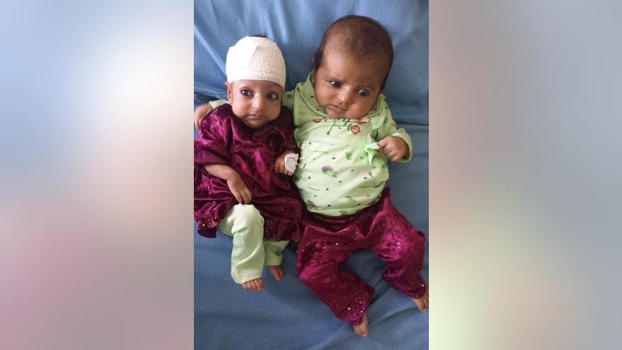 Three-month-old Asree Gul (left) and her twin sister lie on a bed at a hospital in the eastern Afghanistan city of Jalalabad on September 18, 2013, after she was operated on to remove an extra head