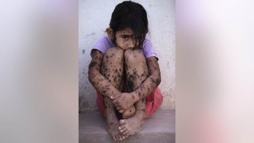 In this April 1, 2013 photo, Aixa Cano, 5, who has hairy moles all over her body that doctors can't explain, sits on a stoop outside her home in Avia Terai, in Chaco province, Argentina. Although it's nearly impossible to prove, doctors say Aixa's birth defect may be linked to agrochemicals. In Chaco, children are four times more likely to be born with devastating birth defects since biotechnology dramatically expanded farming in Argentina. Chemicals routinely contaminate homes, classrooms and drinking water. (AP Photo/Natacha Pisarenko)