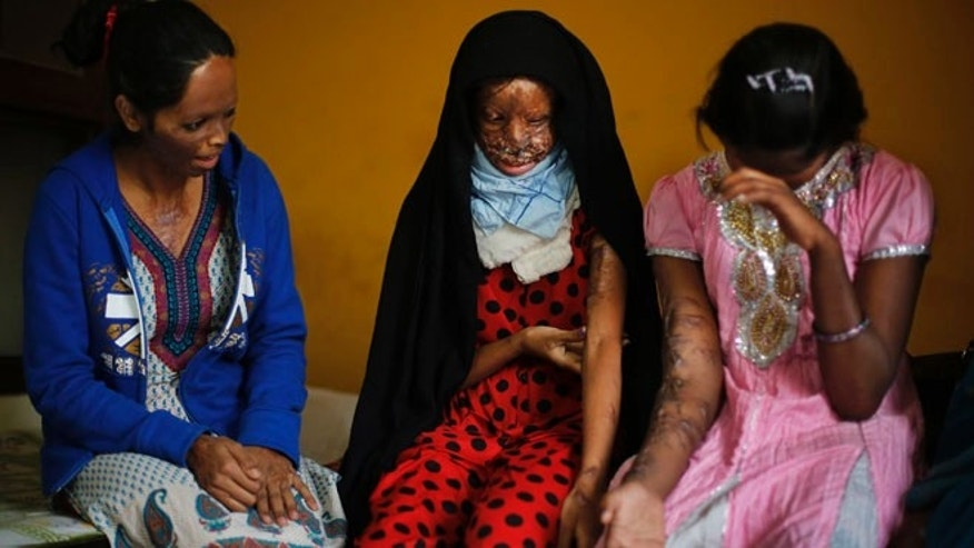 Dec. 5, 2013: In this photo, acid attack victims, from left, Laxmi, 24, Chanchal, 19, and Sonam, 16, interact in the office of the Indian NGO Stop Acid Attacks, in New Delhi, India. Victims of acid attacks are pressing the Indian government to do more to prevent such violence, saying a new law aimed at restricting the sale of dangerous is being ignored. Highly concentrated acids are readily available in India for use as household and industrial cleaners.