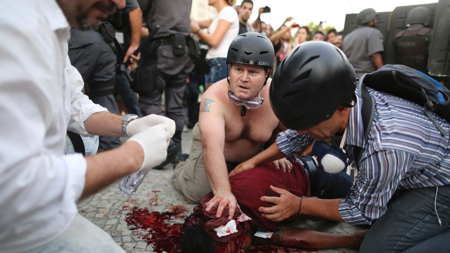 In this Thursday, Feb. 6, 2014 photo, cameraman Andrade Santiago is helped after he was seriously injured during violent clashes between police and demonstrators protesting a bus fare increase, in Rio de Janeiro, Brazil. The Brazilian cameraman who was hit in the head by an explosive device was taken to a hospital and underwent neurosurgery. (AP Photo/Leo Correa)