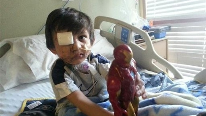 This Feb. 2014 photo provided by Flor Medrano shows Kevin Vicente in Phoenix, Ariz.  Four-year-old Kevin Vicentes road to recovery after a dog mauling on Feb. 20, 2014,  has ignited thousands of impassioned pleas, not just not for him.  The animal behind the attack is now the object of a Facebook page that has garnered more than 39,000 likes on Facebook.  The fate of Mickey the pit bull will ultimately be decided in a court hearing March 25 in Phoenix.  Guadalupe Villa, who was at the scene of the attack, has filed a vicious-animal petition to have the dog put down.  Doctors say the attack has left the boy unable to swallow properly or open one eye.  They say Kevin faces months, if not years, of reconstructive surgery.(AP Photo/)