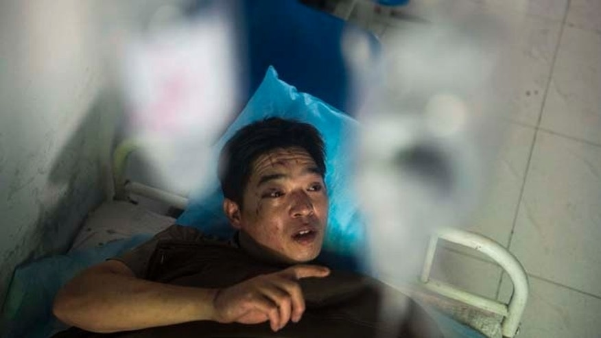July 6, 2014: In this photo released by China's Xinhua News Agency, miner Duan Xukang receives a treatment at a hospital in Fukang City, northwest China's Xinjiang Uygur Autonomous Region, after being rescued following a gas explosion at a coal mine in western China. (AP/Xinhua)