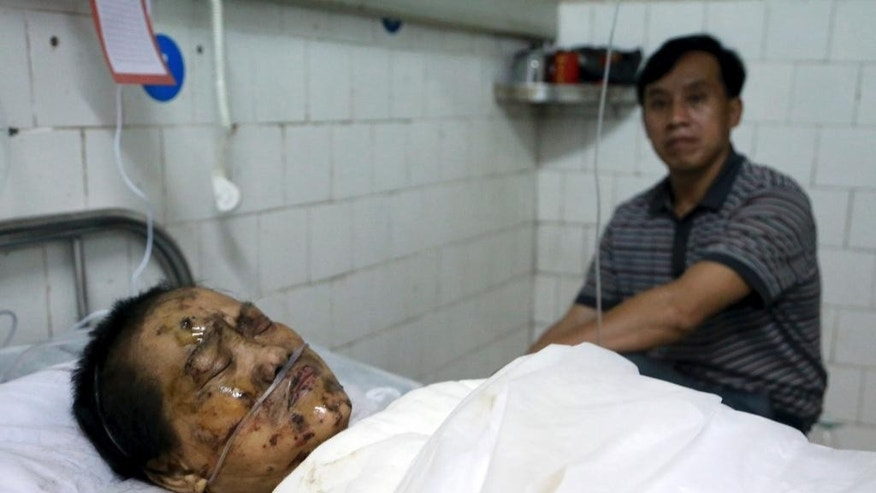 In this Monday, Sept. 22, 2014 photo, a man looks after his wounded relative at a hospital after an explosion at a firework factory in Liling in south China's Hunan province. An explosion at a fireworks factory in southern China killed at least 12 people and injured dozens of others, the local government said Tuesday.  (AP Photo) CHINA OUT