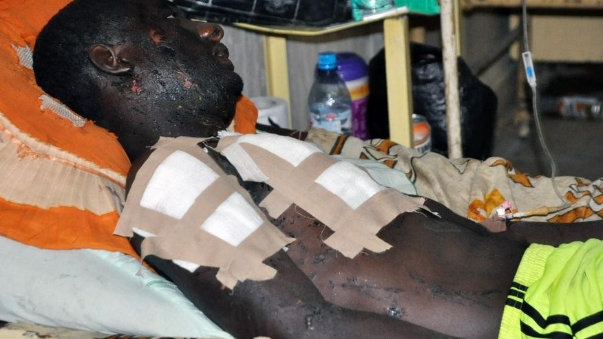 A victim of Friday's bomb explosion recuperates at the Murtala Muhammed specialist hospital, in Kano, Nigeria, Sunday Nov. 30, 2014. More than 102 people were killed in the bomb explosions at the central mosque in the city on Friday, said a hospital worker. A mortuary attendant at the Murtala specialist hospital Kano, Malam Isa Labaran, on Saturday told Associated Press that he counted over 102 dead bodies deposited inside the mortuary on Friday after the multiple explosions at the mosque. (AP Photo/Muhammed Giginyu)