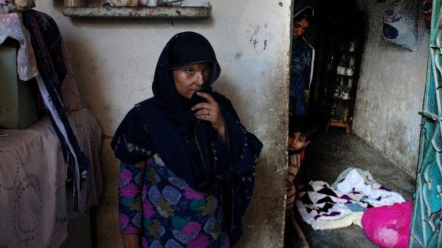 In this photo taken on Saturday, Nov. 22, 2014, Ruqayya Parveen, a 26-year-old Pakistani woman, speaks about her story at her house in the slums of Karachi, Pakistan. Parveen's husband dumped a jug of acid on her and her children when they were sleeping. She said many in her community shun her, not only because of her appearance, but because they also assume she did something to violate her family's honor that must have provoked the attack. (AP Photo/Shakil Adil)