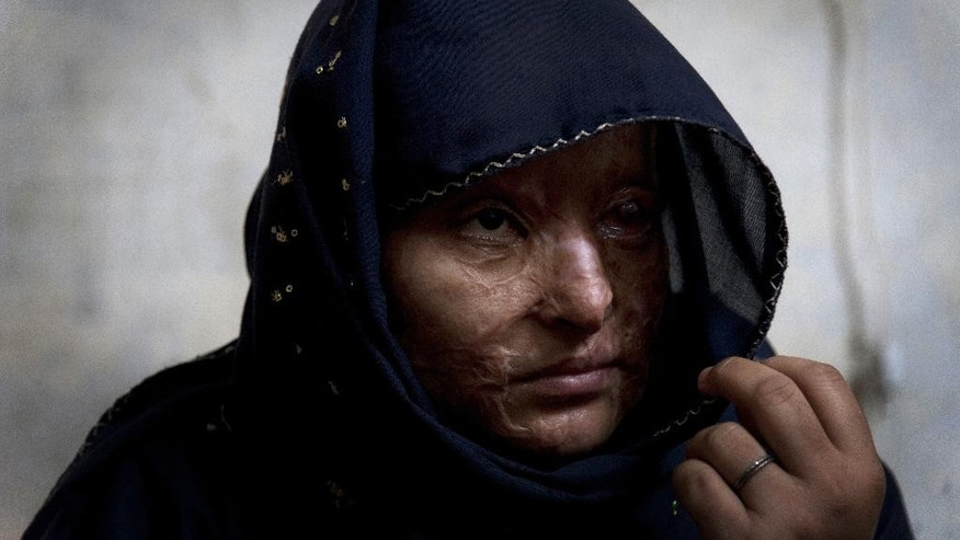 In this photo taken on Saturday, Nov. 22, 2014, Ruqayya Parveen, a 26-year-old Pakistani woman, speaks about her life at her house in the slums of Karachi, Pakistan. Parveen's husband dumped a jug of acid on her and her children when they were sleeping. She said many in her community shun her, not only because of her appearance, but because they also assume she did something to violate her family's honor that must have provoked the attack. (AP Photo/Shakil Adil)