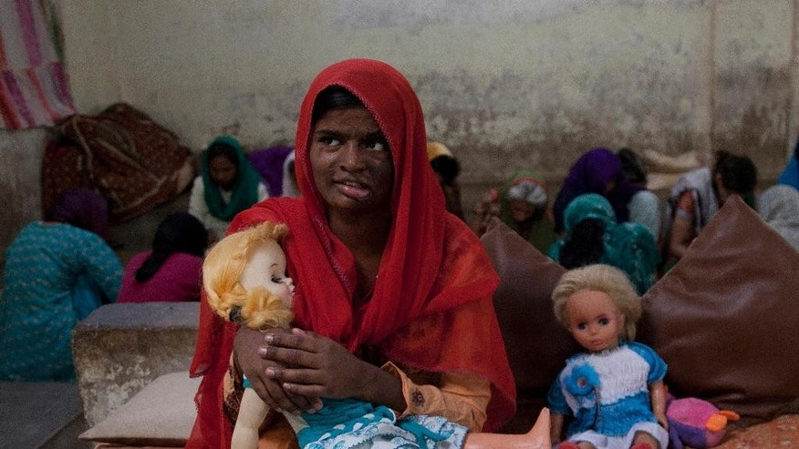 In this photo taken on Saturday, Nov. 22, 2014, Pakistani girl Shabana, 15, holds her doll at Edhi orphanage in Karachi, Pakistan. Her stepmother, she said, beat and threw acid on her five years ago. To avoid further violence, her relatives brought her to the orphanage where she lives and learns different skills for her livelihood. (AP Photo/Shakil Adil)
