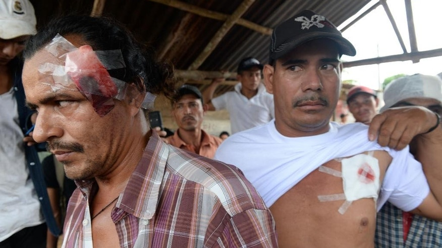 Men show their injuries after riot police cleared a roadblock erected by residents in the the town of El Tule, Nicaragua, Wednesday Dec. 24, 2014. National police special forces and soldiers fired tear gas and rubber bullets at demonstrators who had blocked the Pan American highway to protest against a proposed transoceanic canal. Thousands had maintained the roadblock since workers broke ground Monday for the $50 billion canal, which will require the expropriation of land. (AP Photo/Oscar Navarrete)
