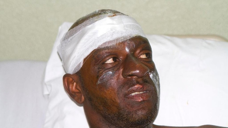 """Singer Darinus Daniel, whose stage name is """"Fantom,"""" from the Barikad Crew music group, talks with journalists from his hospital bed in Port-au-Prince, Haiti, Wednesday, Feb. 18, 2015. Daniel is recovering after being shocked by high-voltage wires during Tuesday's Carnival parade. (AP Photo/Dieu Nalio Chery)"""
