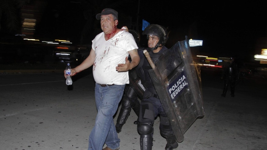 Feb. 24, 2015: An injured protester is taken into custody by police during a protest demanding better labor conditions for teachers in Acapulco, Mexico.