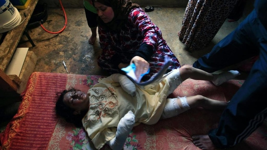 Syrian refugee Shirin Salloum, 11, lies down next to her aunt Aziza, after suffering burns from fire caused by electricity short circuit in her building in the southern port city of Sidon, Lebanon, Thursday, May 7, 2015. The building is in a compound housing more than 500 Syrian refugees. (AP Photo/Mohammed Zaatari)