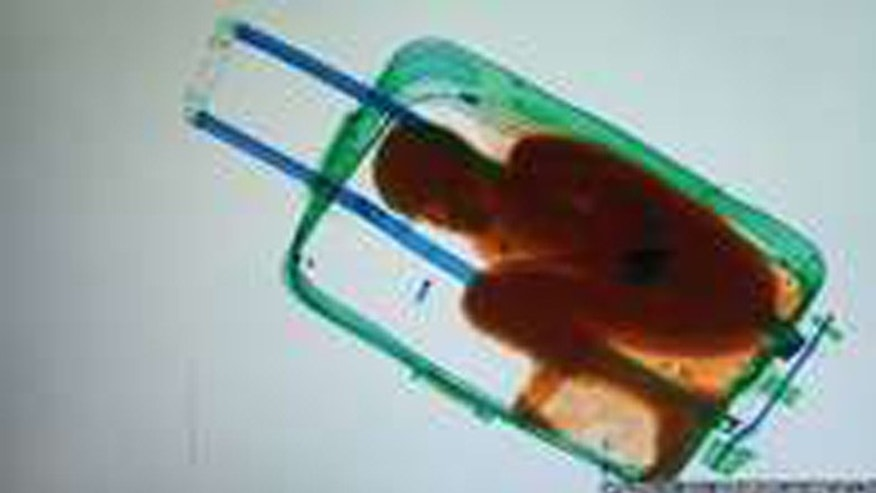The 8-year-old from Ivory Coast was inside this suitcase when authorities discovered him. (AP)