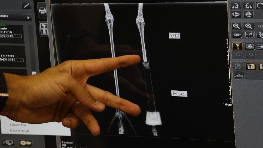 A zoo veterinarian uses an X-ray to show the amputated limb of a flamingo, and prosthetic leg, on a computer screen at a zoo in Sorocaba, Brazil, Tuesday, June 23, 2015. Veterinarian Andre Costa who performed the amputation to halt an infection that would of killed the bird, decided to give the 7-inch carbon limb a try. He says the bird wouldn't have survived with just one leg. (AP Photo/Nelson Antoine)
