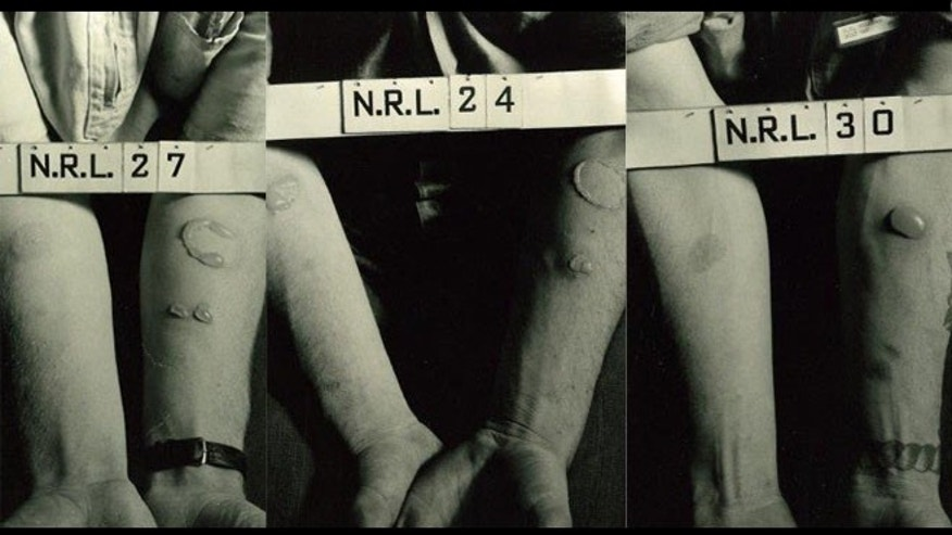 Images of the effects of mustard gas on soldiers' skin. (Photos: Naval Research Laboratory)