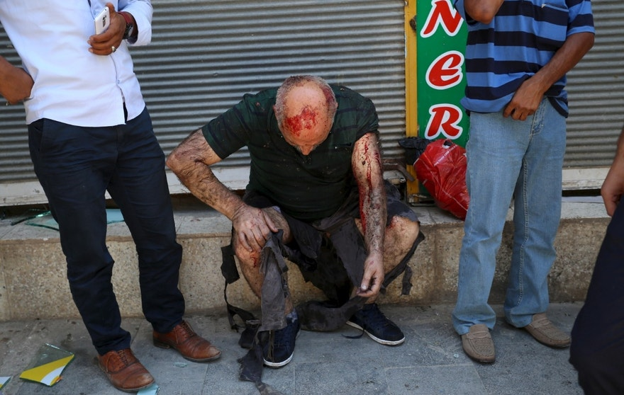 ATTENTION EDITORS - VISUAL COVERAGE OF SCENES OF INJURY OR DEATH  A wounded man sits on a step following an explosion in Suruc, in the southeastern Sanliurfa province, Turkey, July 20, 2015. The explosion outside a cultural centre in the Turkish town of Suruc near the border with Syria killed at least 20 people and wounded many more on Monday, witnesses told Reuters, in what local officials said may have been a suicide bombing. Television footage showed bodies lying beneath trees outside the building in the mostly Kurdish town in southeastern Turkey, which lies some 10 km (6.2 miles) from the Syrian border. REUTERS/Ozcan Soysal/Depo Photos TURKEY OUT. NO COMMERCIAL OR EDITORIAL SALES IN TURKEY.   - RTX1L0E0