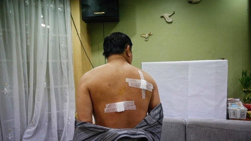 Bangkok bombing survivor, Neoh Hock Guan, 53, shows his injuries to his relatives in his house in Penang, Malaysia on Wednesday, Aug. 19, 2015. Guan reportedly suffered minor injuries during the bombing in central Bangkok on Monday. Four of his family members died. (AP Photo/Joshua Paul)