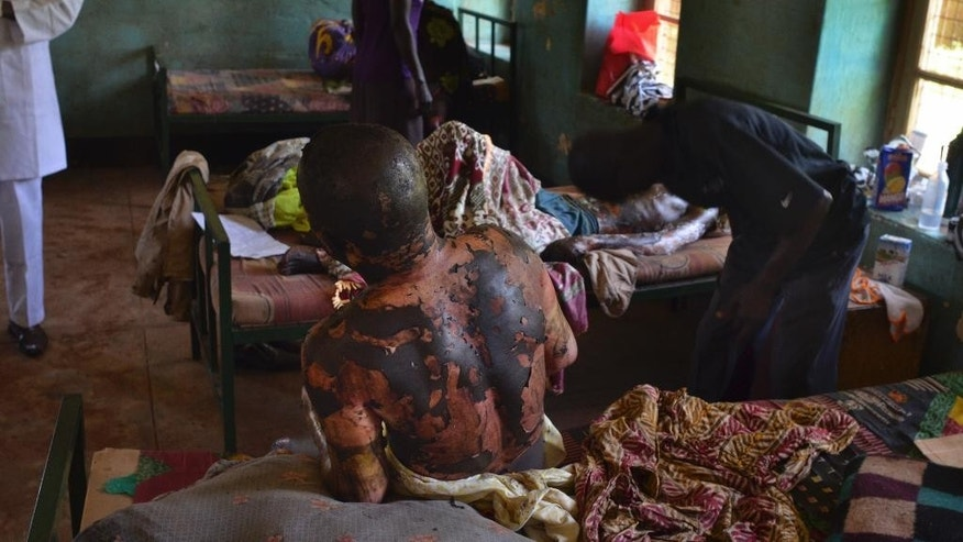 A burn victim lies in the hospital, one of the many injured when a truck carrying petrol overturned Wednesday and then exploded shortly after hundreds of villagers had gathered around to siphon fuel, in Maridi, Western Equatoria State, South Sudan Friday, Sept. 18, 2015. The death toll from a fuel tanker explosion in the rural South Sudanese state reached 183 on Friday, a regional official said, as medical staff and volunteers struggled to keep up with the influx of severely burned patients. (AP Photo/Jason Patinkin)