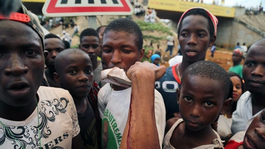 In this photo taken Thursday, Oct. 8, 2015, a man shows on his arm where he was injured at a rally in support of  UFDG presidential candidate Cellou Dalein Diallo in the city of  Guinea Conakry, Guinea. Political clashes between the opposition and ruling party in Guinea are setting the stage for the country's second democratic election in more than half a century. The international community watches the West African country, unable to shake the deadly Ebola virus, with concern that ethnic and political tensions brought to the surface in past elections haven't declined in the past five years. (AP Photo/ Youssouf Bah)