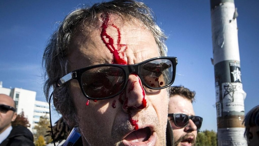 Blood runs down the face of a wounded protester after clashes between demonstrators and riot police, in Bologna, Italy, Sunday, Nov. 8, 2015. Hundreds of demonstrators gathered in Bologna to protest the arrival of Northern League leader Matteo Salvini, whom they decried as a racist for his anti-migrant views, and his meeting with former premier Silvio Berlusconi. (Massimo Percossi/AP via ANSA) ITALY OUT
