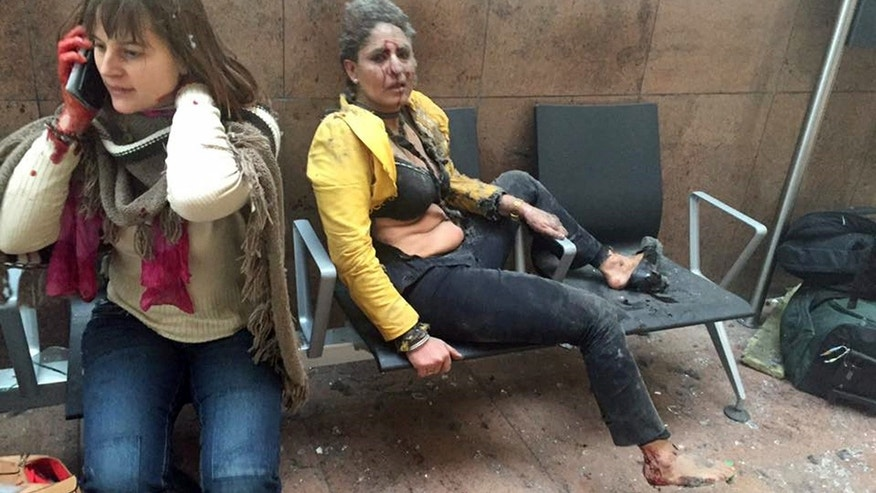 March 22, 2016: Two wounded women sit in Brussels Airport in Brussels, Belgium, after two explosions in the departure hall.