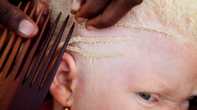Janet Jotham braids the hair of her daughter Lucia Jotham, 8, during a visit to see her two children living at the Kabanga Protectorate Center in Kabanga, Tanzania on Monday, Aug. 27, 2012. If both parents are carriers of the albinism gene their children have a 25% chance of being albino. Having albinism, a genetic condition characterized by a lack of pigment in the body, can be a death sentence in Tanzania. Since 2006 more than 100 people with albinism have been physically attacked in the East African nation, 71 of whom died. Approximately 1 in every 1,400 people in Tanzania has albinism, compared to the world average of 1 in 20,000. Despite these high numbers misinformation about the condition abounds. Attacks by witch doctors, who use albino body parts in potions said to bring riches, have led the government to place children and adults with albinism into centers for their own safety. Although physically safe they are often stranded in the centers, many over-crowded boarding schools, with little long-term plan for their futures.  (AP Photo/Jacquelyn Martin)