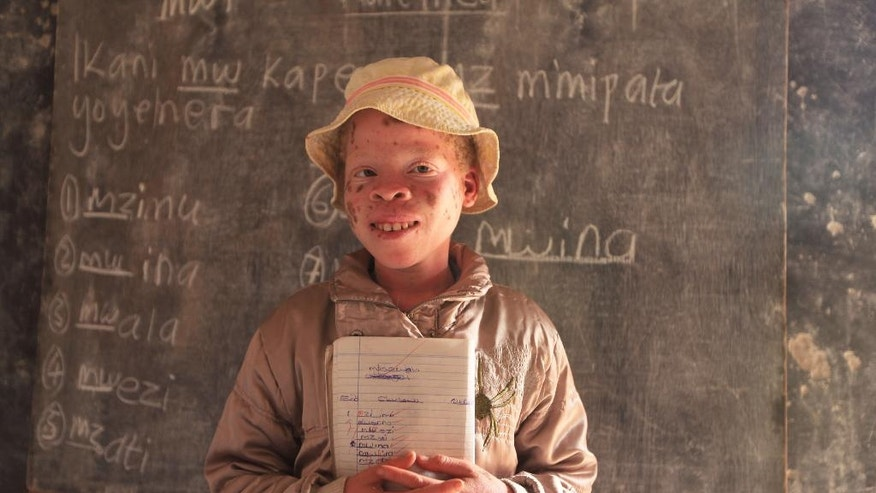 """Mina Godfrey, 13, is seen in class at her school in this Tuesday, May, 24, 2016 photo in Machinga about 200 kilometres north east of Blantyre Malawi. Godfrey says she was placed first in her recent school exams and hopes one day to become a lawyer.But this comes after she survived been abuducted from her bed at night by her uncle. At least 18 Albino people have been killed in Malawi in a """"steep upsurge in killings"""" since November 2014, and five others have been abducted and remain missing, a new Amnesty International report released Tuesday says. (AP Photo/Tsvangirayi Mukwazhi)"""