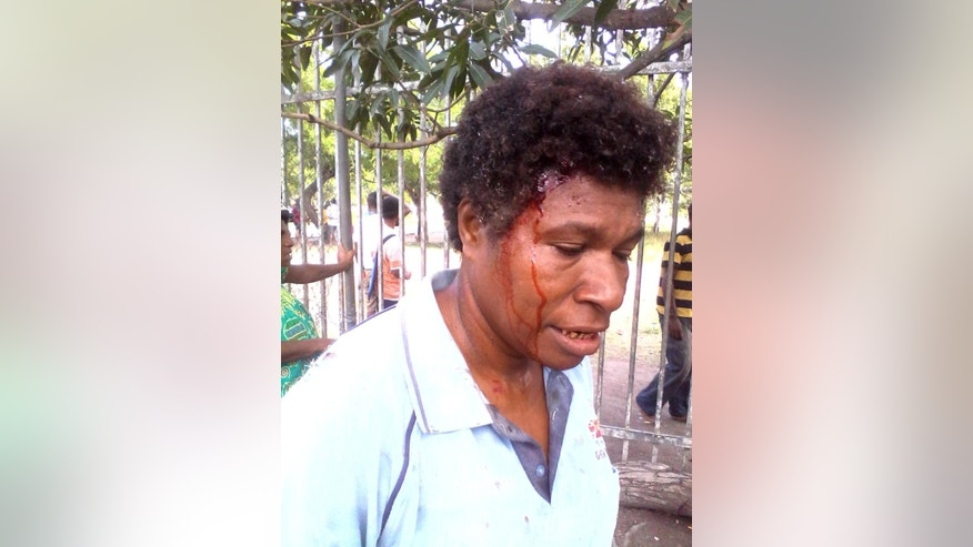 In this photo provided by Staycey Yalo,  34-year-old Esther Was bleeds from a head wound suffered during a student protest Wednesday, June 8, 2016, in Port Moresby, Papua New Guinea. Police fired gunshots to quell the protest demanding the resignation of Prime Minister Peter O'Neill, the government said. (Staycey Yalo via AP) EDITORIAL USE ONLY