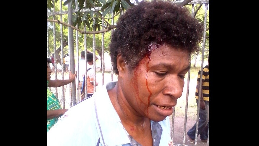 June 8, 2016: In this photo provided by Staycey Yalo, 34-year-old Esther Was bleeds from a head wound suffered during a student protest in Port Moresby, Papua New Guinea.