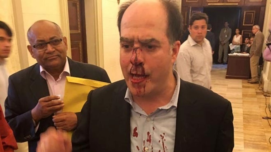 In this photo provided by Elyangelica Gonzalez, Venezuelan opposition Congressman Julio Borges arrives to the National Assembly after he was attacked by government supporters during a protest outside the National Electoral Council, CNE, in Caracas, Venezuela, Thursday, June 9, 2016. Opposition members were turned back from the headquarters of Venezuela's electoral body where the group attempted to enter to demand the government allow it to pursue a recall referendum against President Nicolas Maduro. (Elyangelica Gonzalez via AP)