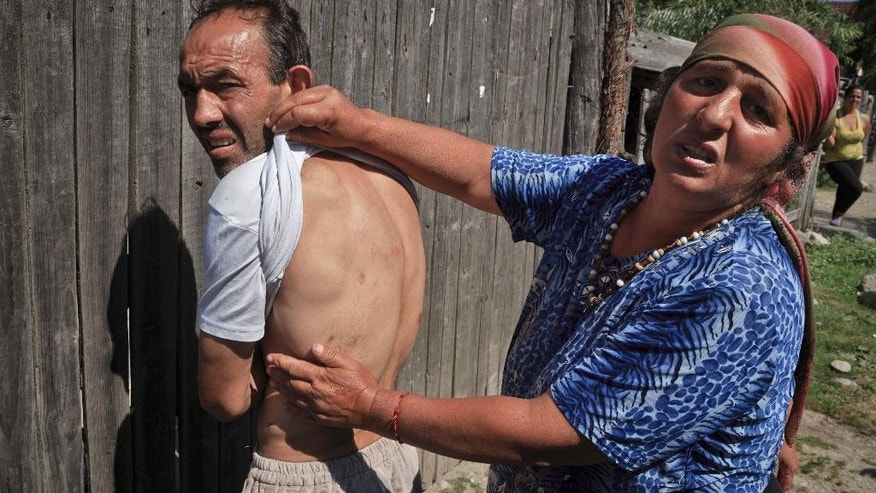 A woman shows bruises on a man's body, allegedly from being hit by gendarmes, in Gamacesti, Romania,Thursday, July 14, 2016, a day after a large police raid on the homes of people suspected of enslaving vulnerable individuals took place in the village. Authorities in Romania have formally detained 38 people, after a raid Wednesday in a rural mountain town on the homes of suspects, on suspicion they took dozens of vulnerable individuals as slaves, kidnapped, chained them up, and forced them to work or fight each other for entertainment. (AP Photo/Vadim Ghirda)