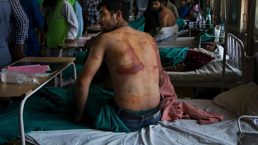 Sameer Ahmed, allegedly beaten up by Indian soldiers who picked him along with several others at Khrew village, recovers at a local hospital in Srinagar, Indian controlled Kashmir, Thursday, Aug. 18, 2016. Residents of Khrew, in Indian-controlled Kashmir, say a young college teacher has been killed while he was in the custody of the Indian army after soldiers picked up dozens of villagers from their homes in the Himalayan region. (AP Photo/Dar Yasin)