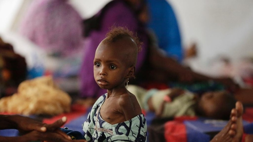 A malnourished child receives health care at a feeding centre run by Doctors Without Borders in Maiduguri Nigeria, Monday Aug. 29, 2016. Children who escaped Boko Haram's Islamic insurgency now are dying of starvation in refugee camps in northeastern Nigeria's largest city as the government investigates the theft of food aid by officials. ( AP Photo/Sunday Alamba)