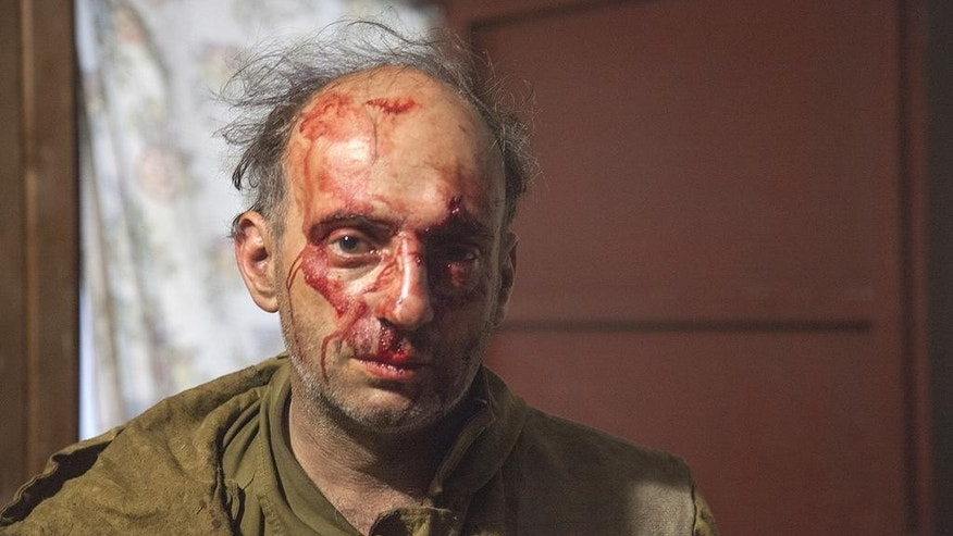 In this handout photo released by Greenpeace, Michael Kreindlin, a Greenpeace Russia staff member, poses for a photo after being beaten by attackers in Mogukorovka village, the Kuban region, 1120 kilometers (700 miles) south from Moscow, Russia, Friday, Sept. 9, 2016. Masked men armed with guns, knives and stun grenades have attacked a camp of volunteer firefighters who came to southern Russia to help to put out forest fires. (Maria Vasileva/Greenpeace Photo via AP)