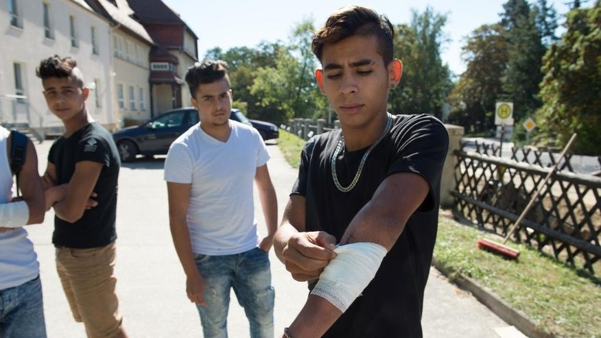 Mehdi, right, from Morocco shows an injury on his arm in Bautzen, Germany, Thursday, Sept. 15, 2016, which he says he sufferd during riots. Police reported verbal and violent attacks have erupted between about 80 far-right activists and about 20 young asylum seekers. (Sebastian Kahnert/dpa via AP)