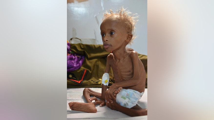 In this photo taken on Friday, Sept. 9, 2016, Salem, 5, who suffers from malnutrition, sits on a bed at a hospital in the port city of Hodeidah, southwest of Sanaa, Yemen. Even before the war, Hodeidah was one of the poorest cities in Yemen, the Arab world's most impoverished nation. Now, the destruction of the port city's fishing boats and infrastructure by Saudi-led airstrikes means the U.N. estimates 100,000 children in the province are at risk of severe malnutrition. (AP Photo)