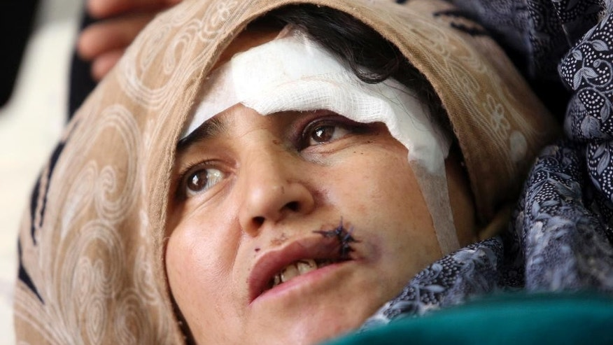 An Afghan wounded woman receives a treatment after a militant attack on a Shiite shrine in Kabul, Afghanistan, Wednesday, Oct. 12, 2016. At least more than a dozen people were killed in the attack on a Shiite shrine in Kabul on Tuesday, an official said. (AP Photo/Rahmat Gul)