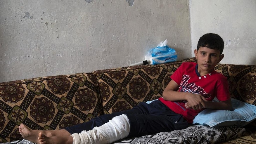 This picture released on Wednesday, Oct. 26, 2016 by the New York-based group Human Rights Watch, shows Adnan, 12, whose leg was broken when an explosive device detonated as he was trying to flee from Islamic State group in early August in Manbij, Syria. Homemade landmines planted by the Islamic State group have killed and injured hundreds of civilians, including dozens of children, in the town of Manbij in northern Syria, Human Rights Watch says. (Ole Solvang, Human Rights Watch via AP)