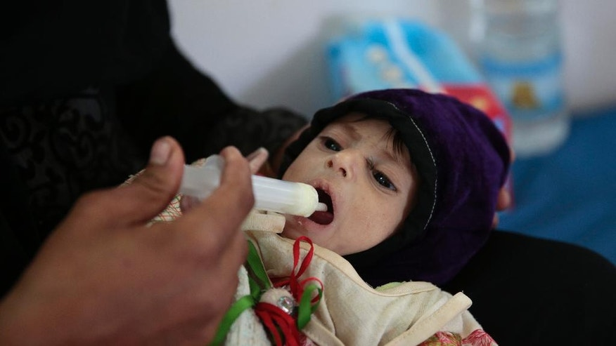In this Oct. 9, 2016 photo, a Yemeni girl who suffers from chronic malnutrition, is fed by her mother at a hospital in Saada province, northwest of Sanaa, Yemen. Saada, the main stronghold of Yemen's Houthi rebels, has been one of the most densely bombed cities in the country during the 19-month air campaign by Saudi Arabia and its allies. Over the past year, an estimated 40 percent of its 50,000 residents fled. Many of those who remained literally dug holes in the ground to hide in and moved schools and hospitals into caves for protection. But some of those who fled have started filtering back. (AP Photo/Hani Mohammed)