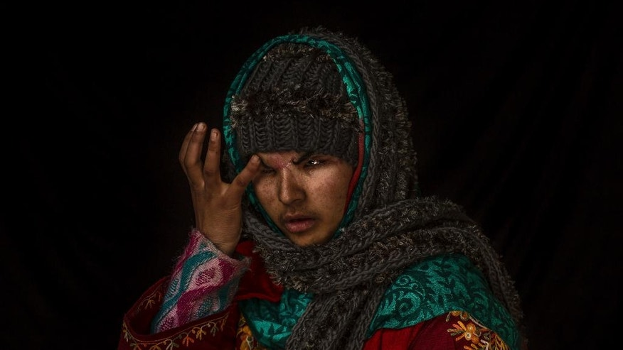 "In this Nov. 29, 2016 photo, Insha Mushtaq Malik poses for a portrait inside her home in Sedow, south Kashmir. Insha says she was standing by the window of her village home watching protesters and troops skirmish when more than a 100 pellets hit her face, ""Everything looks dark and black."" Five months after she lost her eyes. Malik is still learning how to deal with her loss, both emotionally and practically. (AP Photo/Bernat Armangue)"