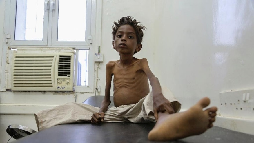 In this December 12, 2016 photo, provided by UNICEF, five-year-old Mohannad Ali lies on a hospital bed in Abs, Yemen. As the first light of dawn trickles in through the hospital window, 19-year-old Mohammed Ali learns that his two-year-old cousin has died of hunger, but he has to remain strong for his little brother Mohannad, who could be next. They are among countless Yemenis who are struggling to feed themselves amid a grinding civil war that has pushed the Arab world's poorest nation to the brink of famine. (Hakim/UNICEF via AP)