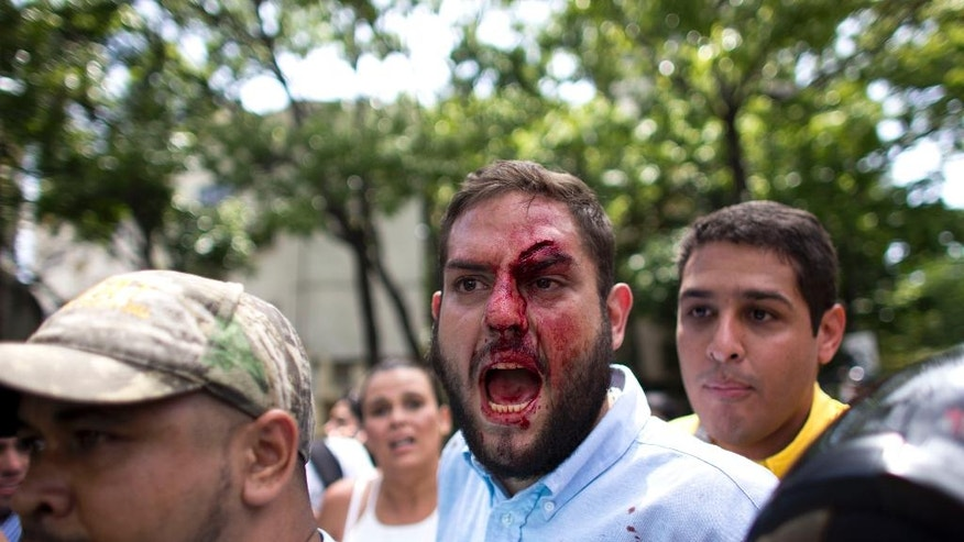 Opposition lawmaker Juan Requesens, center, is escorted by his colleague Jose Manuel Olivares, right, after begin injured by alleged pro government supporters as they protest outside of the Ombudsman's offices in Caracas, Venezuela, Monday, April 3, 2017. A group of opposition lawmakers was attacked by suspected followers of the Government during a demonstration in the center of the capital that left at least one injured Congressman. (AP Photo/Ariana Cubillos)