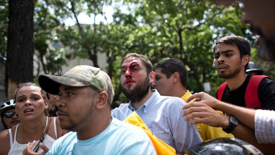 People accompanied to opposition lawmaker Juan Requesens, center, after begin injured by alleged pro government supporters as they protest outside of the Ombudsman's offices in Caracas, Venezuela, Monday, April 3, 2017. A group of opposition lawmakers was attacked by suspected followers of the Government during a demonstration in the center of the capital that left at least one injured Congressman. (AP Photo/Ariana Cubillos)